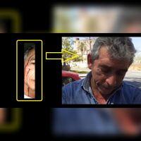 |TERRIBLE VIDEO| El calvario de un taxista salteño: con lágrimas y ensangrentado tras un cuarto robo en el año