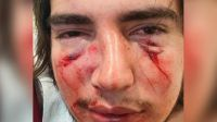 Quiénes son los dos rugbiers imputados por la justicia tras darle una brutal paliza a un jovencito