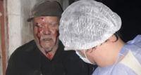 Niños de 10 y 13 años desfiguraron a golpes a un anciano y le prendieron fuego la casa