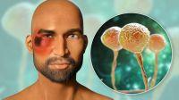 """Otro paciente con COVID-19 se contagió de """"hongo negro"""" y Salud emitió una severa advertencia"""